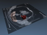 download 3D CT